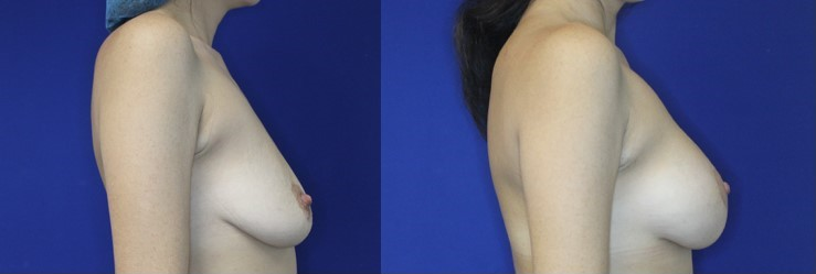 Breast Augmentation and Breast Lift Before and After Image right side profile view