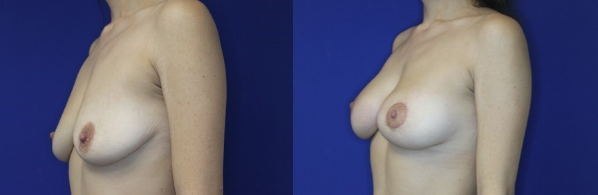 Breast Augmentation and Breast Lift Before and After Image 3/4 front view