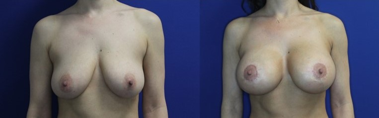 Breast Augmentation and Breast Lift Before and After Image front view