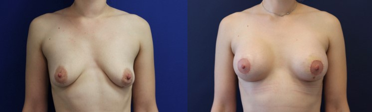 Breast Augmentation Before and After Image front view