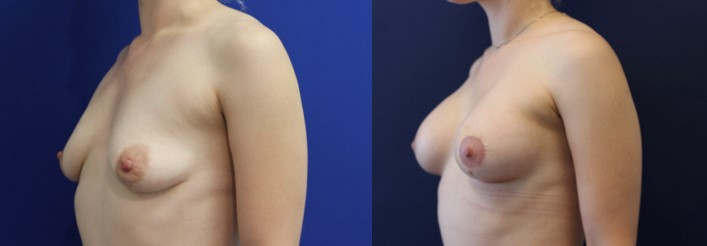 Breast Augmentation and Lift Before and After Image 3/4 front view