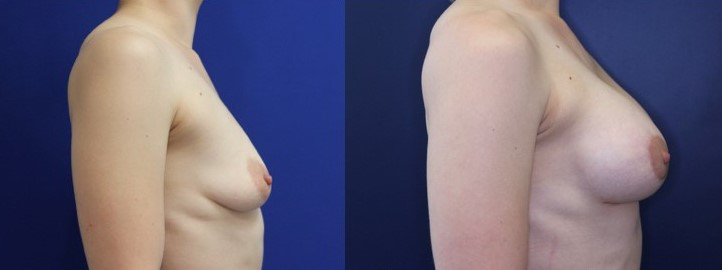 Breast Augmentation and Breast Lift Before and After Image right side profile