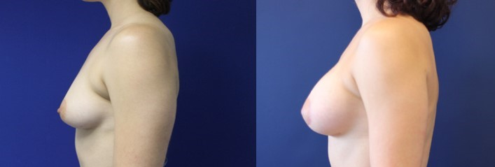 Breast Augmentation and Breast Lift Before and After Image left side profile view