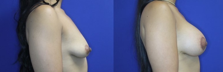 Breast Augmentation and Lift Patient Before and After Image right side profile view