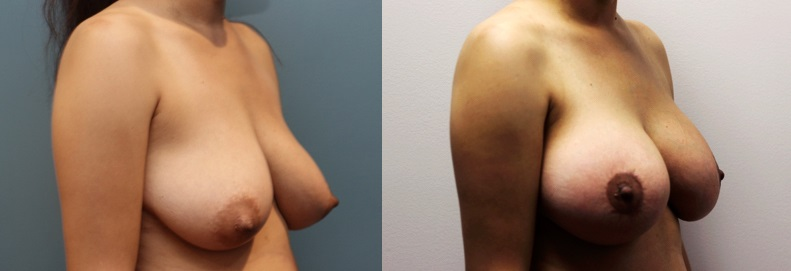 Breast Augmentation and Lift Patient Before and After Image 3/4 front view