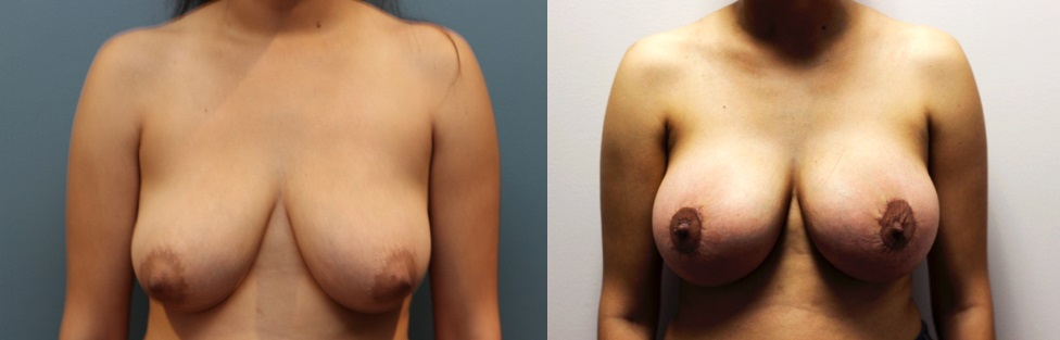 Breast Augmentation and Lift Patient Before and After Image front view