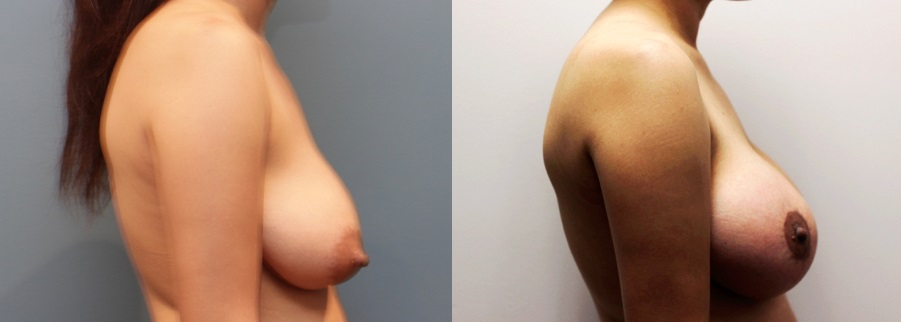 Breast Augmentation and Lift Before and After Image right side profile view