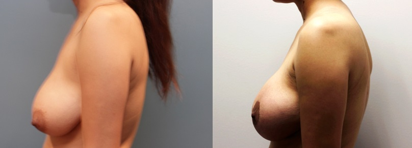 Breast Augmentation and Lift Before and After Image left side profile view